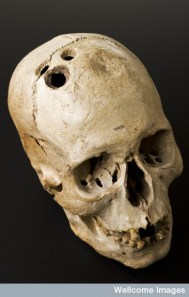 http://asylumscience.com/2012/09/14/forgotten-histories-of-psychosurgery-and-facing-our-fears/
