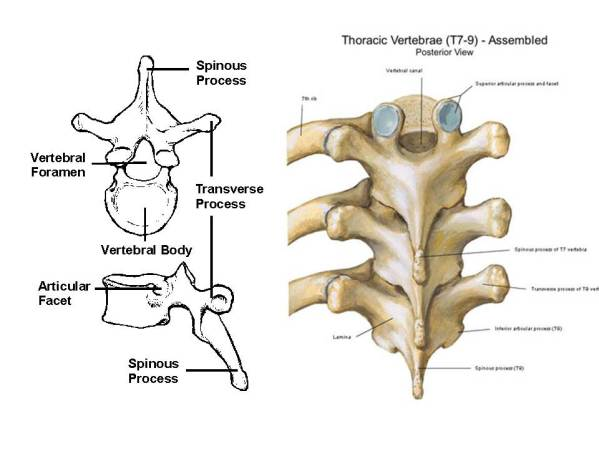 Left image shows an individual thoracic vertebra. (Image taken from: ). Right image shows how normal thoracic vertebrae are arranged.  (Image taken from http://masajivarna.com/Galery1/pages/Thoracic%20Vertebrae%20Assembled.html)